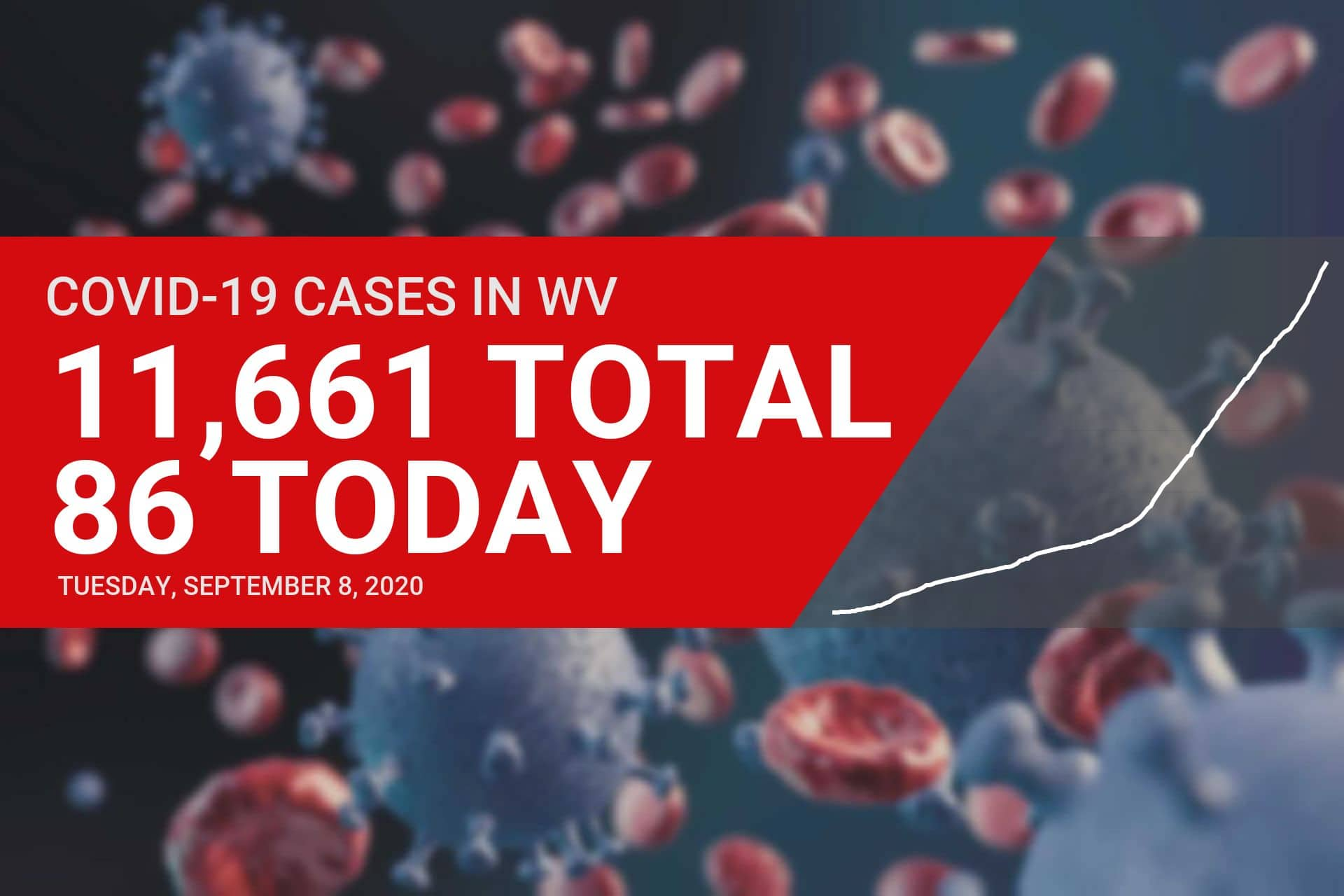Four new COVID-19 cases reported as Upshur County turns yellow in Tuesday's DHHR update